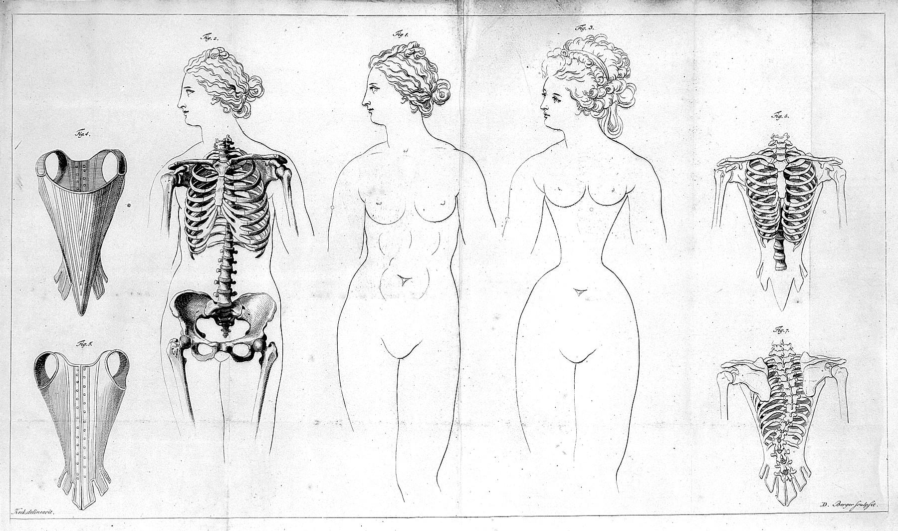 束腰衣导致的肋骨畸形和身体损害。 (维基百科)